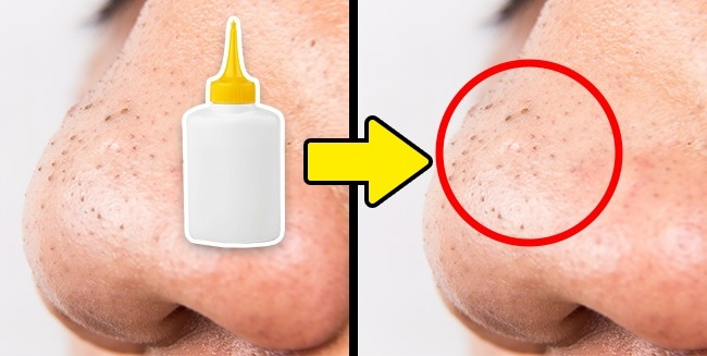 14Beauty Life Hacks From the Internet That Appeared toBeHarmful
