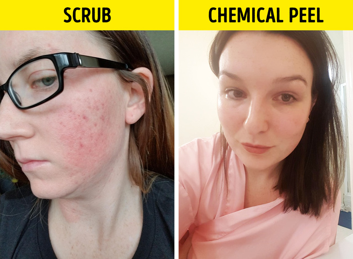 10Common Skin Care Mistakes That Are Damaging Your Face