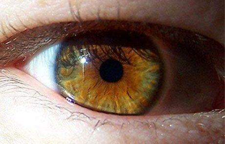 עיניים בצבע… אלסר!