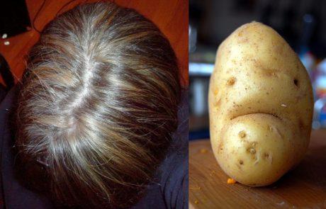 המרכיב הטבעי הזה מונע שיערות אפורות, מחזק את השיער ומונע נשירה. כך תשמשו בו!