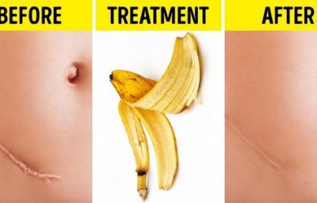 9 שימושים יעילים לקליפת הבננה!