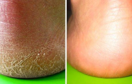 10 דרכים להיפטר מהיובש ברגליים – התוצאות יהפכו את עורכם לחדש