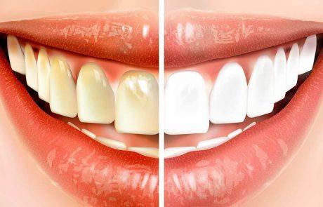 עשו את הפעולה הפשוטה הזאת לפני הצחצוח ותוכלו לחסוך אלפי שקלים על טיפולי שיניים
